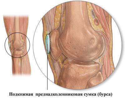 Подкожная преднадколенниковая сумка с локализацией гусиного бурсита на внутренней поверхности колена