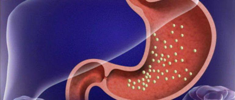 папилломы в желудке