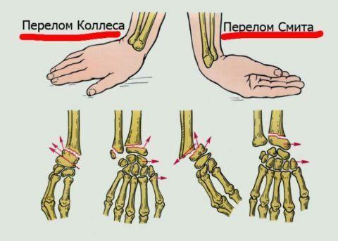 Получение травмы при падении на кисть.