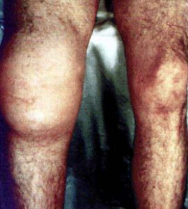 Поражение суставов при третичном сифилисе