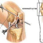 После артроскопии в терапию больного обязательно включен комплекс спецупражнений.