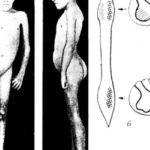 Последствия полиомиелита могут послужить показаниями для постановки артродеза