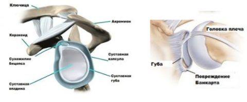 Повреждение Банкарта плечевого соединения происходит довольно часто при травме рук.