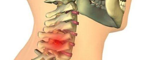 Предупредить тяжелые последствия грыжи поможет только своевременное лечение.