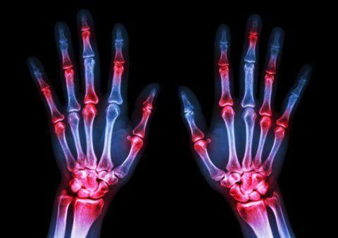 При артрите значительно страдает работоспособность человека