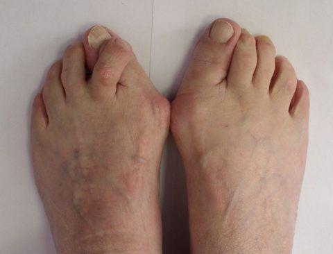 При артрите развиваются деформации пальцев