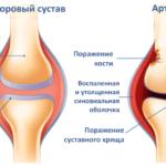 При артрите ткани сустава претерпевают изменения и могут начать «щелкать» при ходьбе.