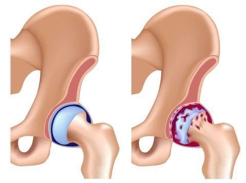 При артрозе происходит разрушение хряща