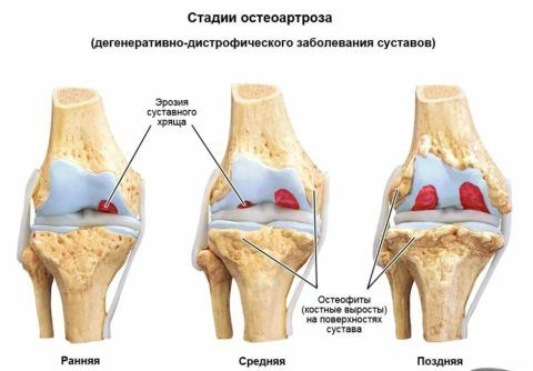 При ДОА происходит разрушение хрящевых тканей сустава, отсюда и нестерпимая боль на поздних стадиях.
