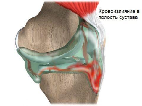 При гемартрозе колена происходит кровоизлияние в полость сустава