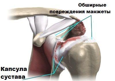 При капсулярном виде изменения происходят в суставной капсуле.