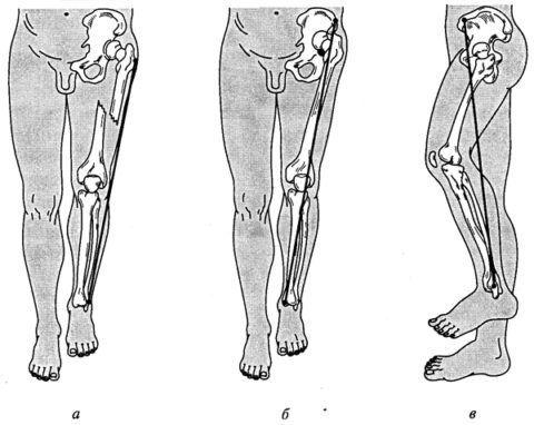 При коксартрозе третьей степени одна нога становится короче другой.