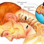 При остеохондрозе шеи могут «тянуть» и болеть верхние конечности
