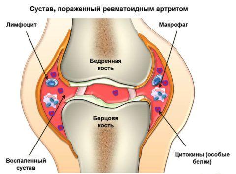 При остром артрите часто появляется жгучая боль в области сочленения.