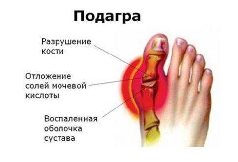 При подагре происходит разрушение кости солями мочевой кислоты, что сопровождается болезненностью.