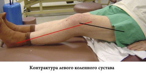 При прогрессирующем артрозе может возникнуть контрактура сустава.
