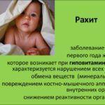 При рахите у крошек до 1 года могут «похрустывать» все сочленения.