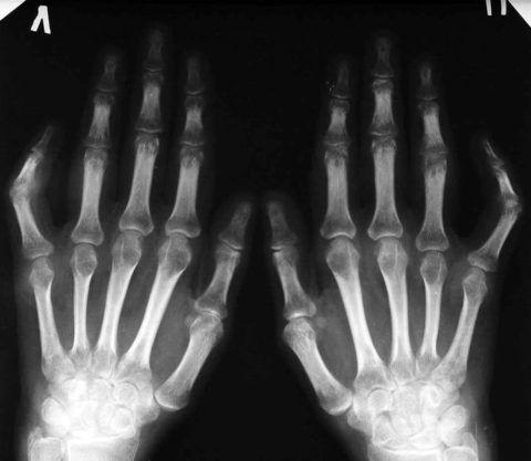 При рентгене врач получает менее детальное изображение