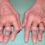 При ревматоидном артрите часто ломит и «выкручивает» суставы