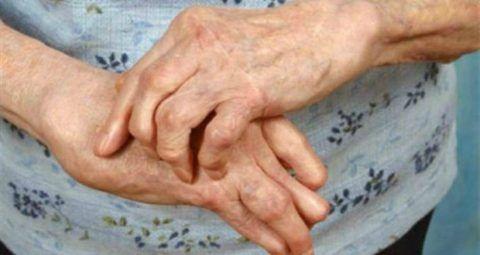 При ревматоидной форме поражения изменения наблюдаются в сочленениях кистей рук (фото).