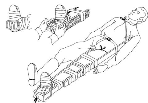 При травме важна правильная транспортировка пациента в лечебное учреждение. Необходимо зафиксировать ногу и переносить пострадавшего лёжа на носилках.