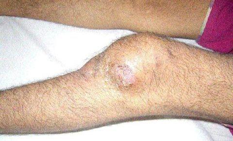 При туберкулезе костей и суставов происходит разрушение опорно-двигательной системы.