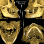 Причиной нарушения подвижности суставного соединения нижней челюсти может стать родовая травма.