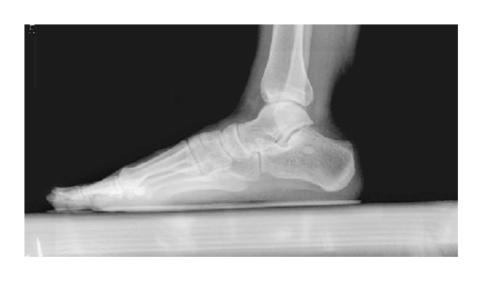 Пример рентгеновского снимка голеностопного сочленения, выполненного под нагрузкой