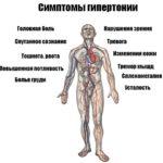 Признаки гипертонии;