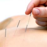 Процедура иглоукалывания проводится в Медицинском центре Валентина Дикуля специалистом высшей категории.