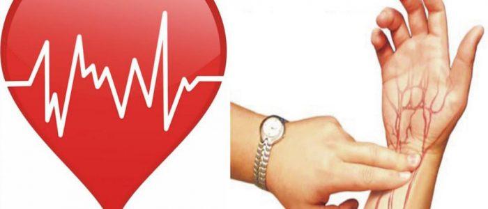 Аритмия и частота пульса