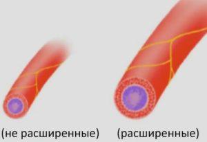 Циннаризин от высокого давления