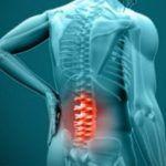 Раствор Димексида поможет при радикулите и болях в спине