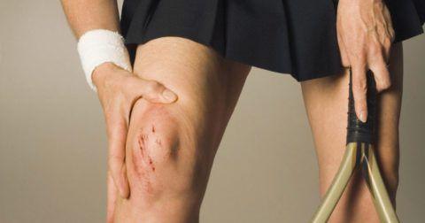 Различные травмы колена могут стать причиной дегенеративных изменений в суставе.