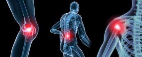 Разминка для суставов показана при ряде недугов.