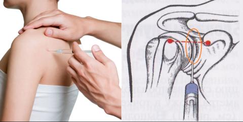 Разновидности техники введения обезболивающего вещества в плечевой сустав