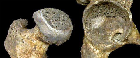 Разрушение хрящевой и костной ткани при артрозе 3 стадии