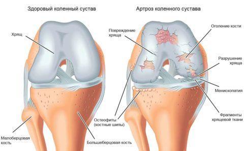 Разрушение коленного сустава приостанавливается при выполнении упражнений по методике профессора.