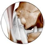 Разрыв коленного сустава в области боковых связок
