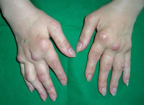 Развитие шишек на суставах пальцев рук при третьей степени заболевания.
