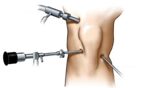 Реабилитация после артроскопии происходит в разы быстрее, чем после операции с открытым доступом