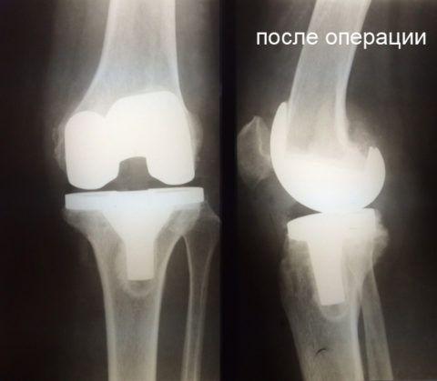 Рентген снимок пациента, которому выполнили эндопротезирование.