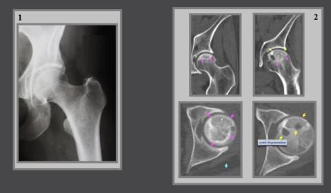 Рентген здорового тазобедренного сустава (1), но на КТ (2) виден некроз в головке бедра