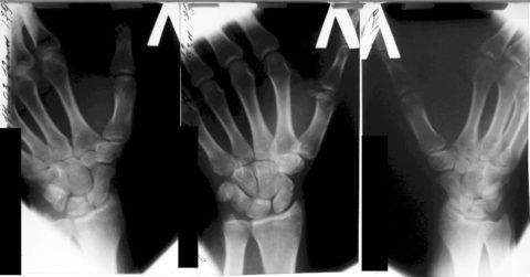 Рентгенография — один из основных методов диагностики артроза