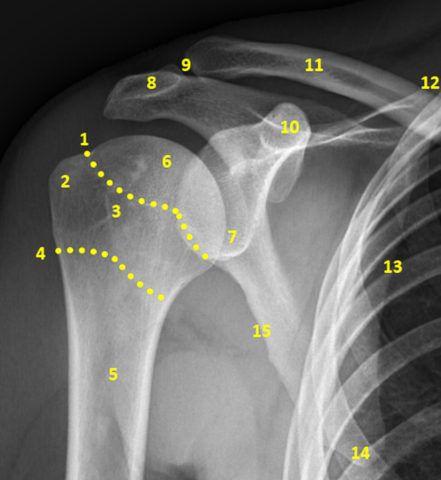Рентгеновский снимок плечевого сочленения
