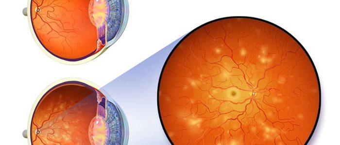 Причины и лечение ретинопатии