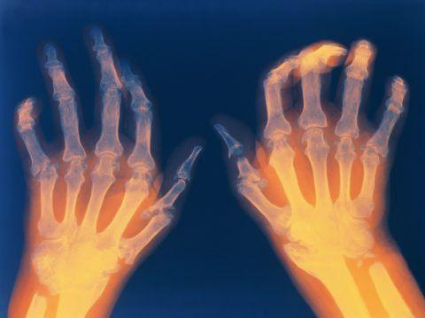 Ревматоидный артрит приводит к деформации сочленений