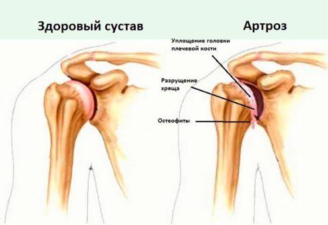 Риск повреждения плеча повышается при артрозе.