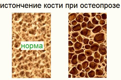 С возрастом к остеохондрозу «присоединяется» другой недуг – остеопороз
