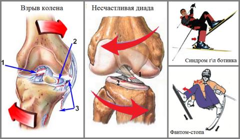 Самые распространенные механизмы нарушения передней крестообразной связки колена
